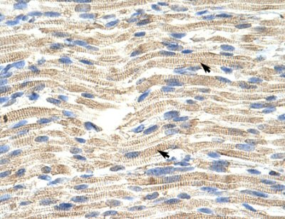 Immunohistochemistry (Paraffin-embedded sections) - CDKN2AIP antibody (ab50901)