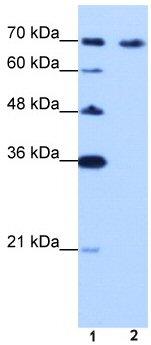 Western blot - CDKN2AIP antibody (ab50901)