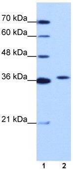 Western blot - EXOSC7 antibody (ab50902)