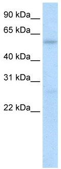 Western blot - HIC2 antibody (ab50905)
