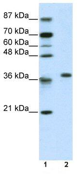 Western blot - RPL6 antibody (ab50907)