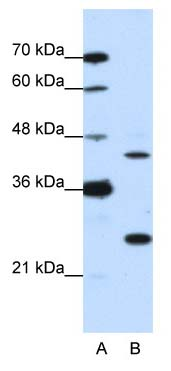 Western blot - MINA53 antibody (ab50908)