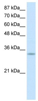 Western blot -  PACT (PKR activating protein) / PRKRA antibody (ab50916)