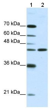 Western blot - NMUR2 antibody (ab50928)