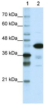 Western blot - Anti-TDP43 antibody (ab50930)