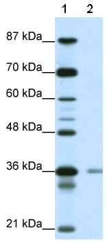 Western blot - HIF1AN  antibody (ab50931)
