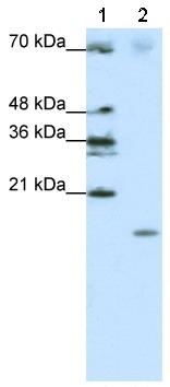 Western blot - SRP19 antibody (ab50932)