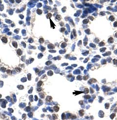 Immunohistochemistry (Paraffin-embedded sections) - POP4 antibody (ab50948)