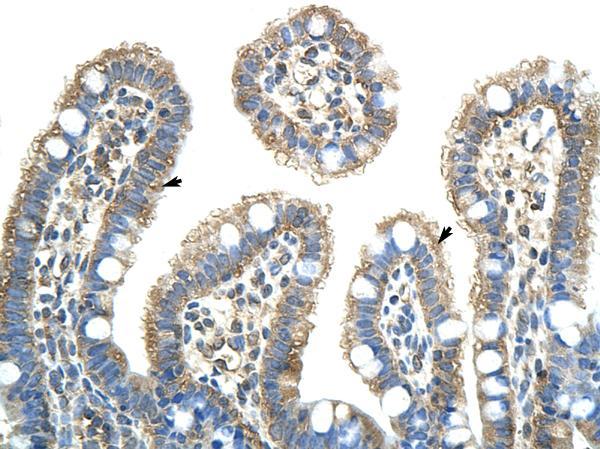 Immunohistochemistry (Paraffin-embedded sections) - NXF5 antibody (ab50954)