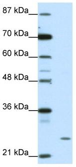 Western blot - ZNF253 antibody (ab50992)