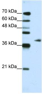 Western blot - ADAT1 antibody (ab50994)