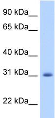 Western blot - APOBEC2 antibody (ab51000)