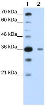 Western blot - DAZAP1 antibody (ab51010)