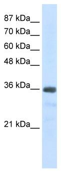 Western blot - U1SNRNPBP antibody (ab51035)