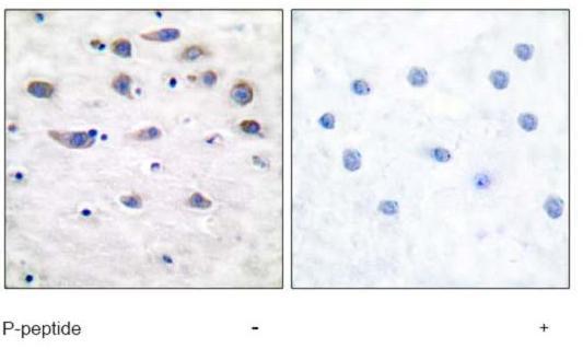 Immunohistochemistry (Paraffin-embedded sections) - Glutamate Receptor 1 (AMPA subtype) (phospho S849) antibody (ab51063)
