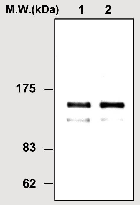 Western blot - Ceruloplasmin antibody [3B11] (ab51083)