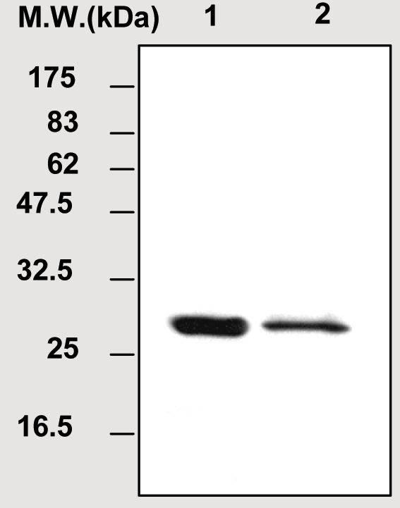 Western blot - Amyloid P component antibody [6E6] (ab51085)