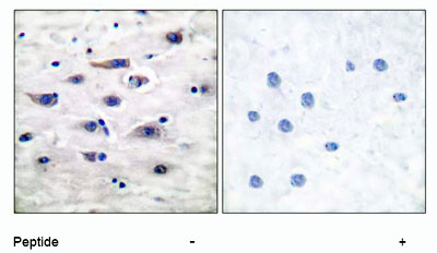 - Glutamate Receptor 1 (AMPA subtype) antibody (ab51092)