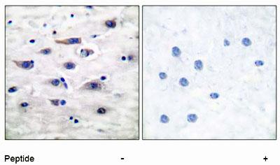 Immunohistochemistry (Paraffin-embedded sections) - Glutamate Receptor 1 (AMPA subtype) antibody (ab51093)