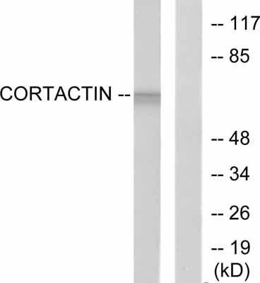 Western blot - Cortactin antibody (ab51101)