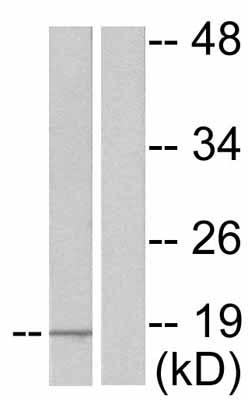 Western blot - alpha Synuclein (phospho Y133) antibody (ab51104)