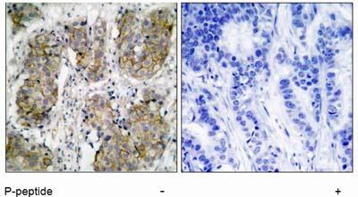 Immunohistochemistry (Paraffin-embedded sections) - EGFR (phospho S1070 + S1071) antibody (ab51108)