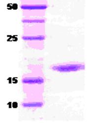 SDS-PAGE - DnaK protein (ab51117)