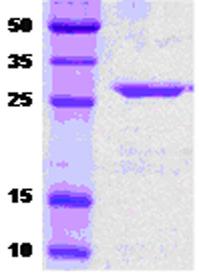 SDS-PAGE - DnaK protein (ab51119)