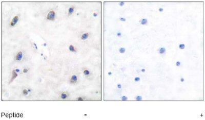 Immunohistochemistry (Paraffin-embedded sections) - DARPP32 antibody (ab51120)