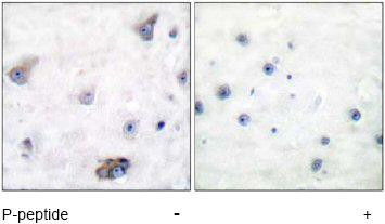 Immunohistochemistry (Paraffin-embedded sections) - GABA A Receptor beta 1 (phospho S434) antibody (ab51123)