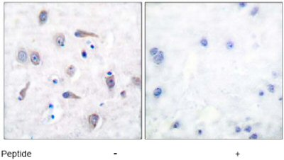 Immunohistochemistry (Paraffin-embedded sections) - beta Amyloid antibody (ab51135)