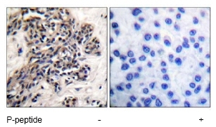 Immunohistochemistry (Paraffin-embedded sections) - Hsp90 (phospho S254) antibody (ab51136)