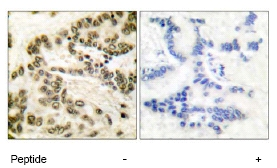 Immunohistochemistry (Paraffin-embedded sections) - CREB antibody (ab51138)