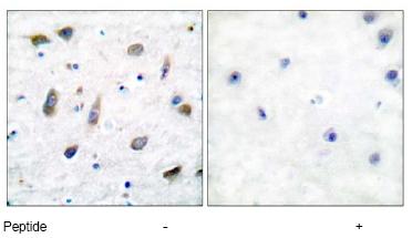 Immunohistochemistry (Paraffin-embedded sections) - GABA A Receptor beta 1 antibody (ab51144)