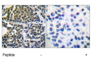 Immunohistochemistry (Paraffin-embedded sections) - Hsp90 beta antibody (ab51145)