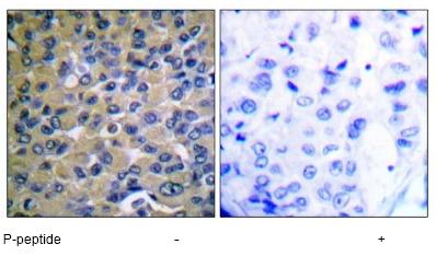 Immunohistochemistry (Paraffin-embedded sections) - IKB epsilon (phospho S22) antibody (ab51146)
