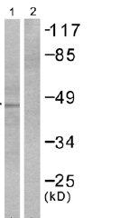 Western blot - Cytokeratin 18 antibody (ab51148)