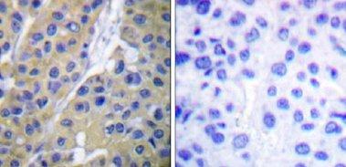 Immunohistochemistry (Paraffin-embedded sections) - Cytokeratin 18 (phospho S33) antibody (ab51149)
