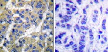 Immunohistochemistry (Paraffin-embedded sections) - Cytokeratin 8 (phospho S73) antibody (ab51150)