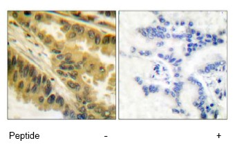Immunohistochemistry (Paraffin-embedded sections) - PKC antibody (ab51157)