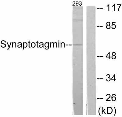 Western blot - Synaptotagmin antibody (ab51164)