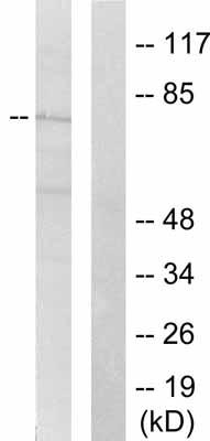 Western blot - SHC (phospho Y427) antibody (ab51170)