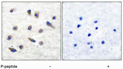 Immunohistochemistry (Paraffin-embedded sections) - Tyrosine Hydroxylase (phospho S31) antibody (ab51197)