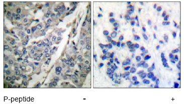 Immunohistochemistry (Paraffin-embedded sections) - Tyrosine Hydroxylase (phospho S40) antibody (ab51206)
