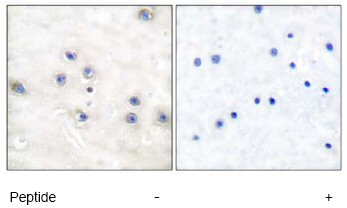 Immunohistochemistry (Paraffin-embedded sections) - MAP3K8 antibody (ab51208)