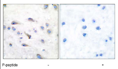 Immunohistochemistry (Paraffin-embedded sections) - MAP3K8 (phospho T290) antibody (ab51214)