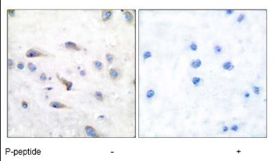 Immunohistochemistry (Paraffin-embedded sections) - MAP3K8 (phospho T290) antibody (ab51214)