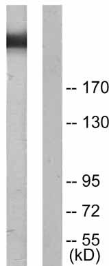 Western blot - Filamin A (phospho S2152) antibody (ab51229)