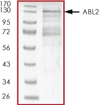 SDS-PAGE - ABL2 protein (Active) (ab51259)