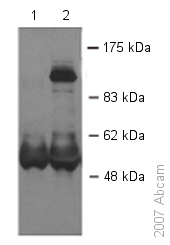 Immunoprecipitation - Dact1 / Dapper homolog 1 antibody (ab51260)